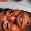 Death of Ali Abdulhadi Mushaima
